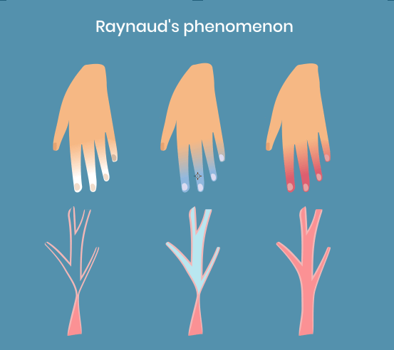 Raynauds Syndrome infographic